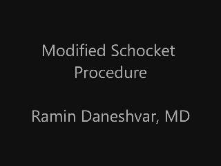 Modified Schocket Procedure